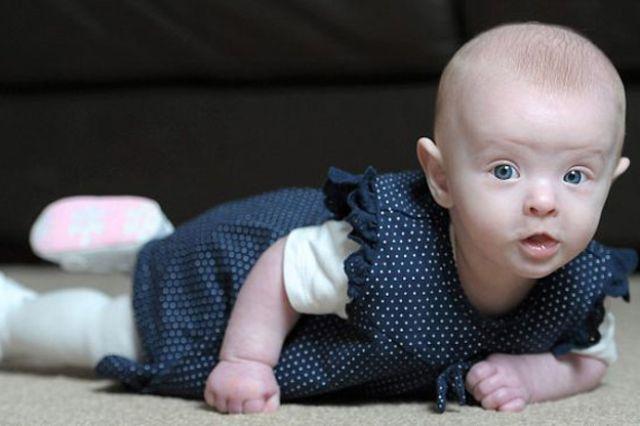 معجزة طبية.. طفلة تنجو الموت ولادتها بدون