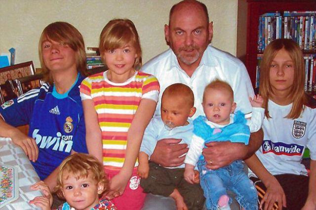 الطفل ليو بارنيت الوحيد في بريطانيا الذي يعاني هذه الحالة