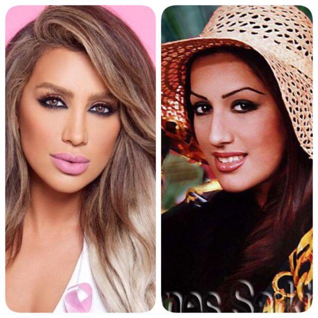 مايا دياب قبل وبعد التجميل