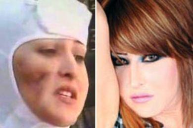 الفنانة الكويتية سونيا استعادت ملامحها بأربع عمليات تجميل