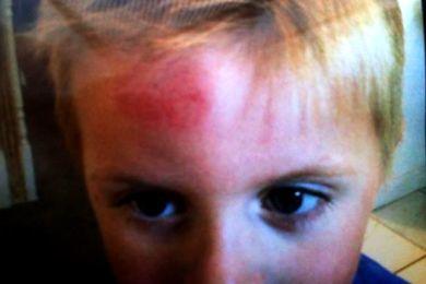 طفل يضرب رأسه يوميا بسبب مرض نادر