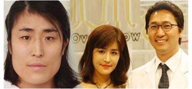 الطبيب مع الكورية قبل وبعد التجميل